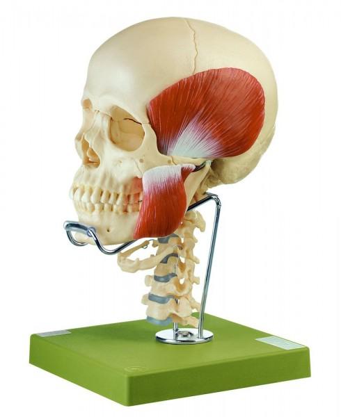 14teiliges Schädelmodell. Mit Kaumuskulatur, Halswirbelsäule und Zungenbein - Somso